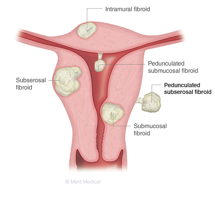 Pedunculated Subserosal Fibroid UFE